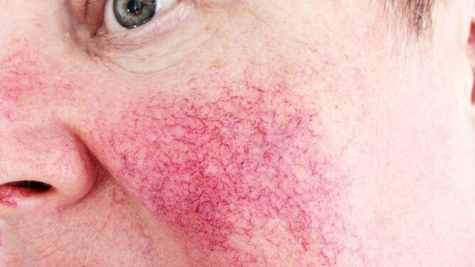 Trądzik różowaty to choroba, którą należy leczyć
